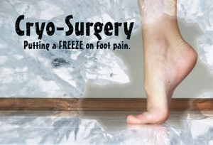 Cryo-Surgery image, picture of crytherapy, image of cryosurgery