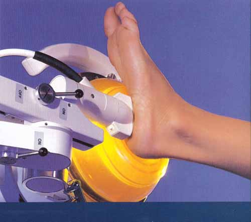Image of ESWT Machine for Achilles Shockwave Therapy, Pittsburgh PA