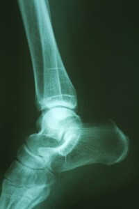 Stress Fracture X-Ray