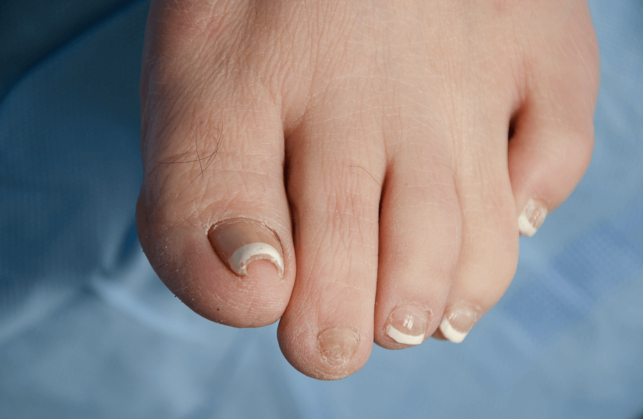 Ingrown Toenail Image
