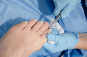 Dr removing an ingrown toenail Pittsburgh