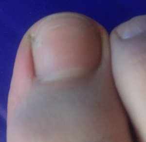Straight edge of an ingrown toenail 3 months after it was permanently fixed north hills