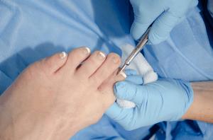 Dr removing an ingrown toenail