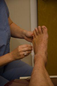 Deformed baby toe