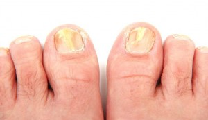 Kerydin Treatment fungal toenail treatment