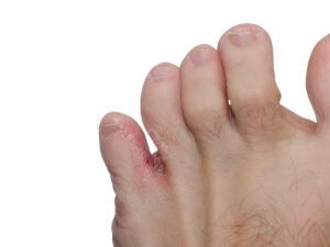 Athlete's foot between toes