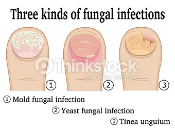 types of toenail fungal infections pittsburgh
