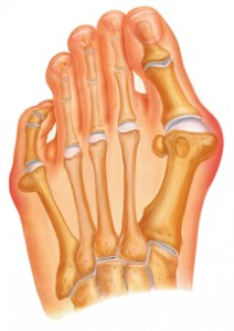 Image of Bunion