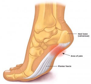 Image of the Plantar Fascia Cranberry