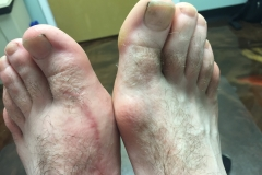 bunion surgery before pittsburgh foot doctor