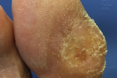 big-toe-ulcer-with-diabetic-neuropathy