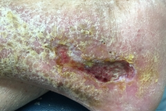 lateral-right-leg-ulcer