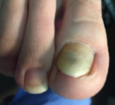 infected ingrown toenail, Beaver Pa