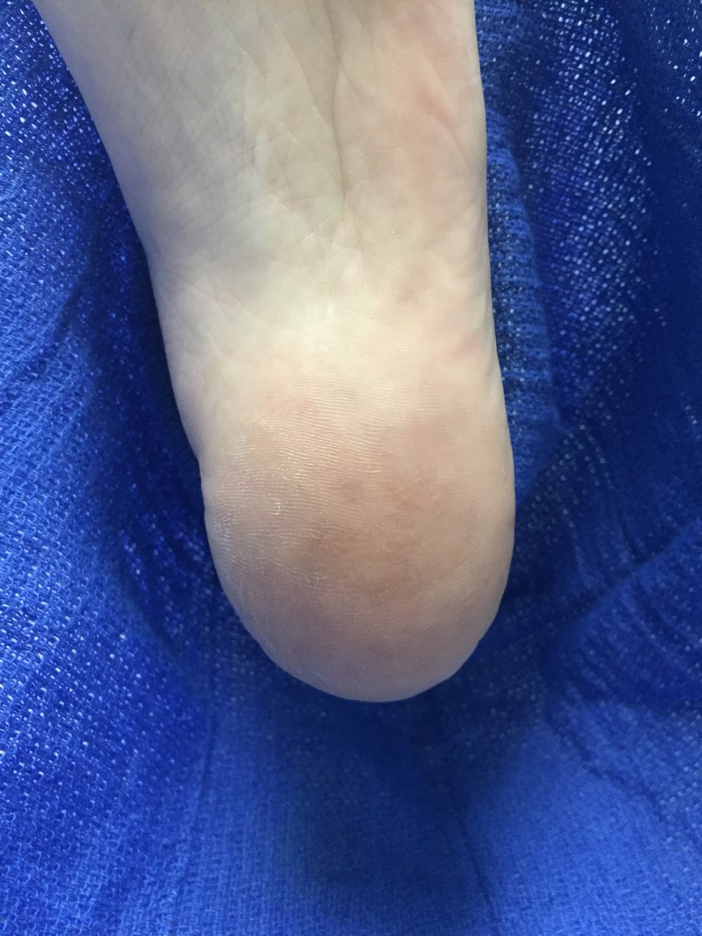 This is our patient on visit 4. A final laser treatment was administered to ensure all warty tissue was killed. It has been 2 years and the warts have not returned. Call us today 878-313-3338 to schedule at any of our four Podiatry Clinics in Beaver, Butler, or Allegheny County locations, including Podiatry offices Moon Township, Ambridge, Cranberry Township's full service Podiatric office and our newest Foot Clinic, Beaver, PA Call now to talk to a foot care specialist 878-313-3338 ( FEET) Click Here to E-mail Dr. Christina Teimouri DPM