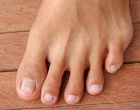 cutting a V in an ingrown toenail