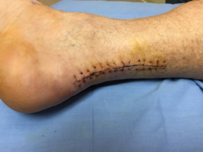 Achilles tendon surgery image