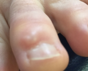 #1 A digital mucoid cyst is often found near a nail bed, or on the toe. It can become irritated by shoes and the skin is fragile and can easily break open, making infection a common complication.