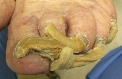 5 nails worst.jpg