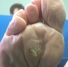 removing calluses on feet