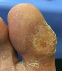 diabetic wound image