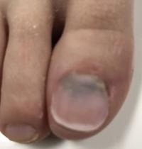 image fake nail after