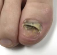 image fake nail before