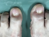 picture artificial toenail after Keryflex nail restoration procedure