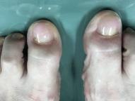 picture artificial toenail after Keryflex nail restoration procedure