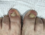 picture yellow damaged nails before artificial toenail