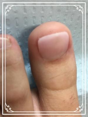 artificial toenails  for missing toenail