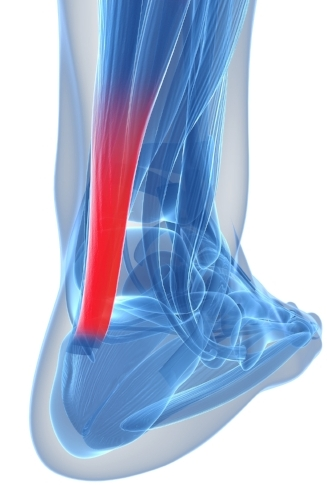 Picture of Achilles tendon inserting into back of heel bone