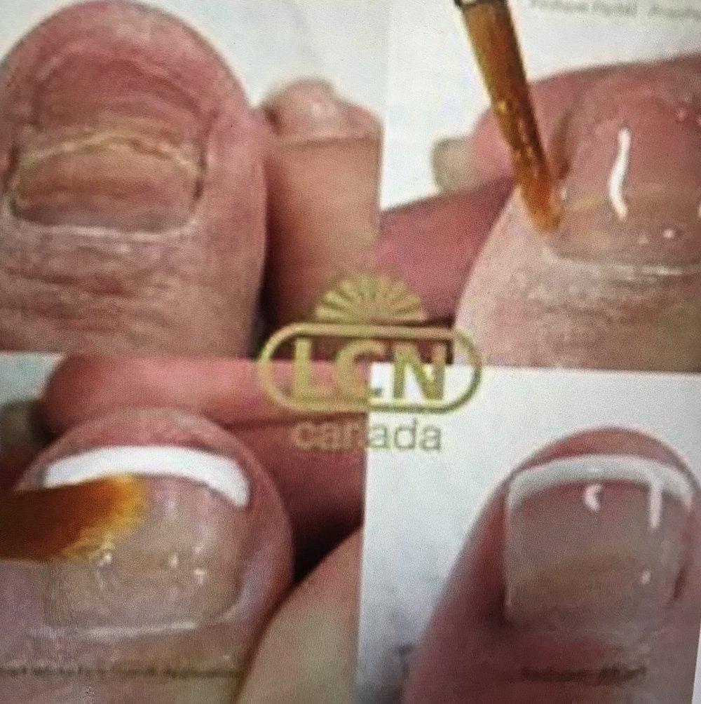 LCN Barefoot nails image