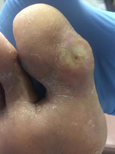 diabetic ulcer almost healed.JPG