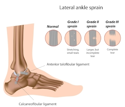 picture of ankle sprain.jpg