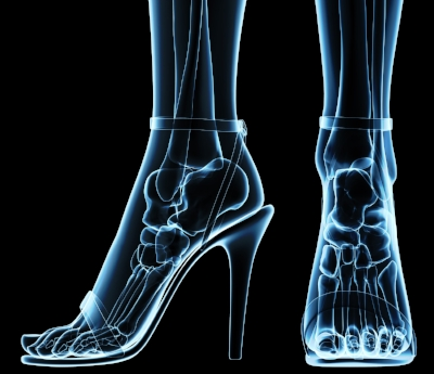 Ankle sprain risk factors and causes:  - · Wearing shoes which don't support the ankle properly. A good example is wearing running shoes to play basketball.· Placing excessive stress on the ankle. This often occurs when walking or running on uneven surfaces.· Playing high impact sports with a lot of quick stopping, starting, jumping, and body contact. Two good examples are football and basketball.