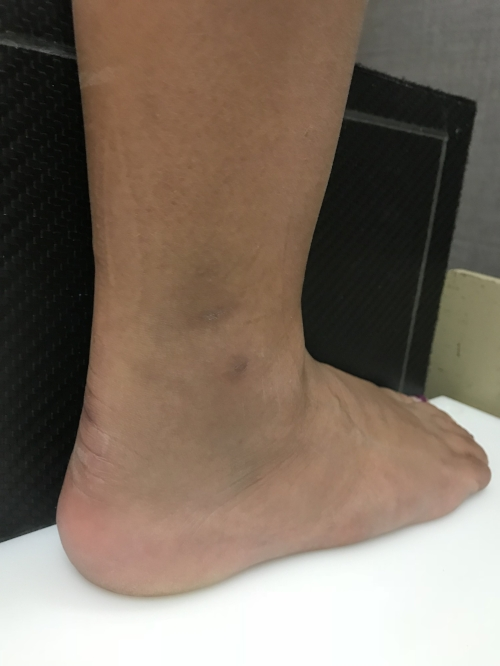 picture ankle sprain