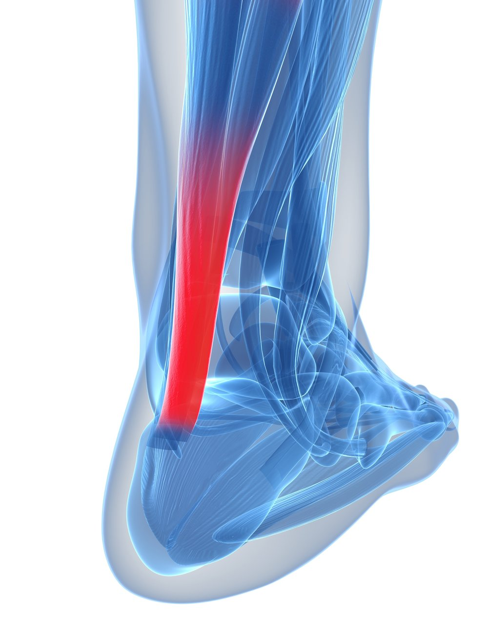 picture of achilles tendonitis.jpg