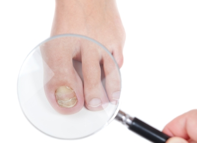 picture of toenail with fungus.jpg