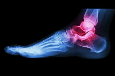 ice or heat for foot injuries
