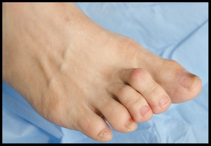 You Don't have to live with toe pain.