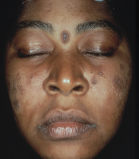 Baseline - Acne, Hyperpigmentation, Uneven Skin Tone
