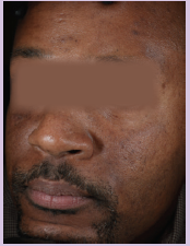 Baseline - Hyperpigmentation
