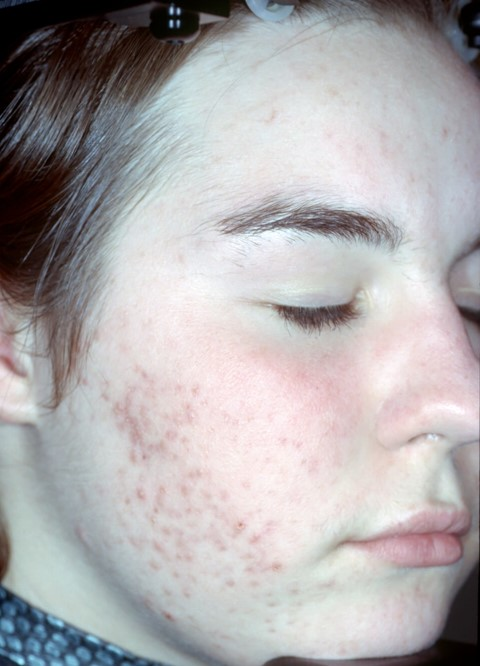 Baseline - Acne & Post Inflammatory Scarring