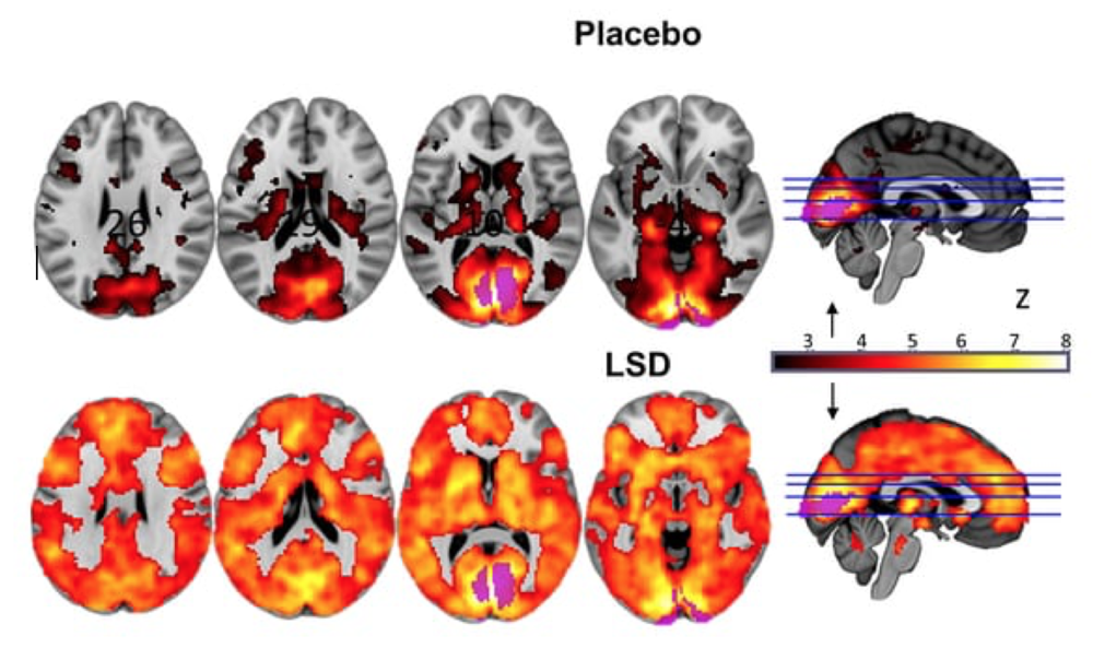 Figure 1: Differences in activation between participants on placebo and those on LSD. Image from Carhart-Harris and colleagues [8].