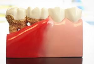 gum-disease-treatments-300x207.jpg