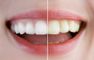 teeth whitening vs veneers