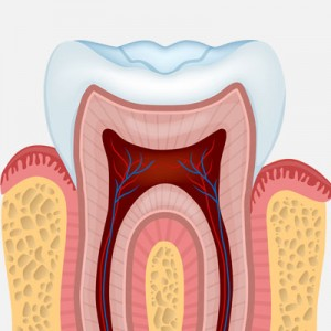 root-canal-square-300x300.jpg