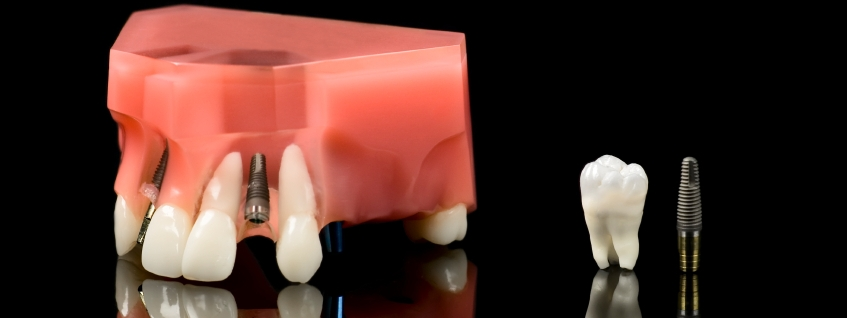 Does Dental Implant Surgery Hurt Our Implants Dentist Explains