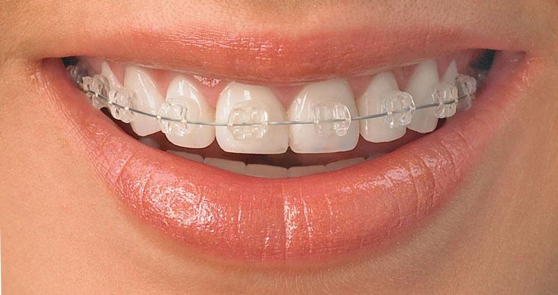 braces-web-size.jpg