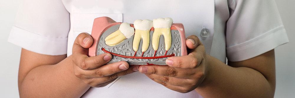 wisdom-teeth-banner.jpg